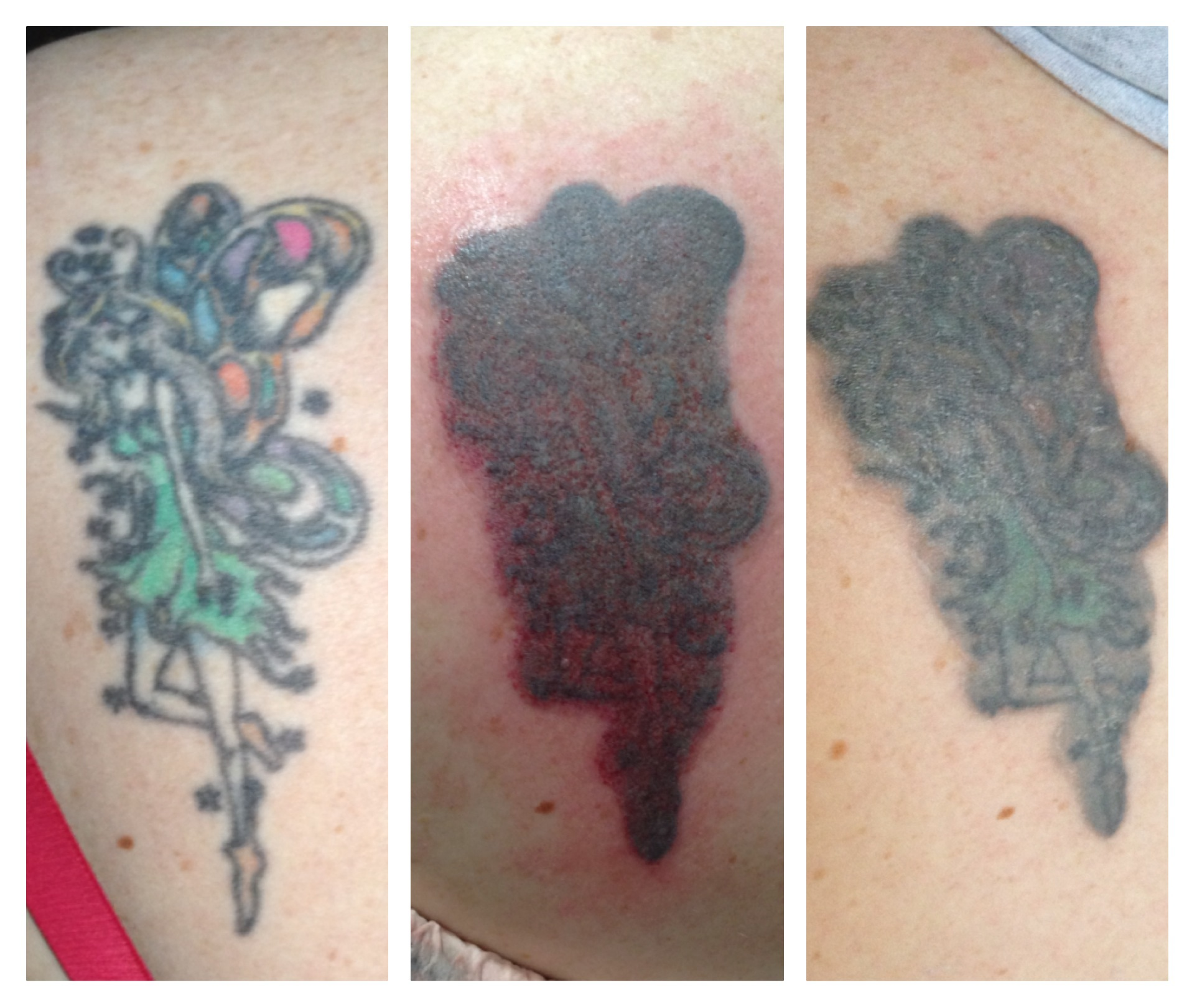 tattoo RMB grey work cover up